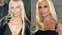Top 10 Weird Celebrity Plastic Surgery Transformations